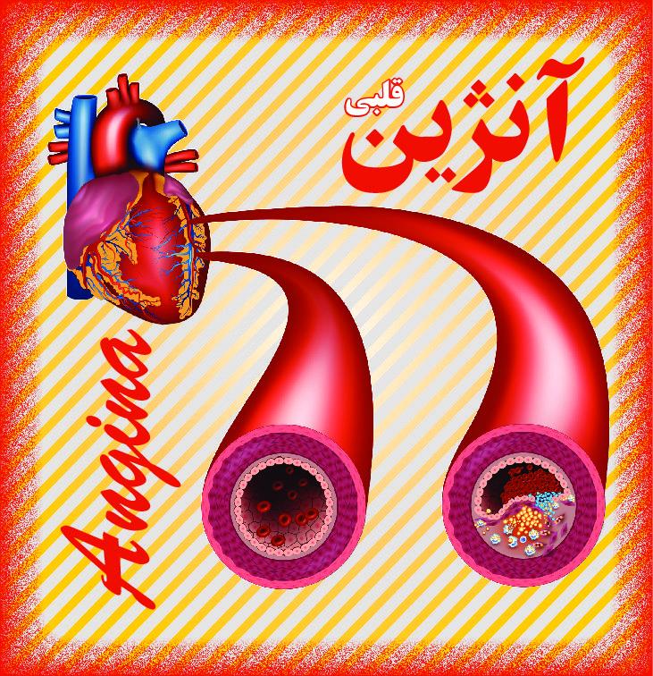 آنژین قلبی 1